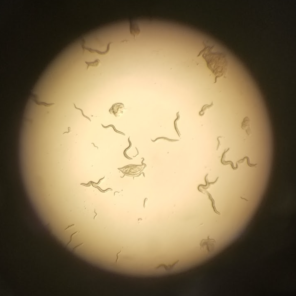 Photo of multiple C. elegans worms through a microscope.